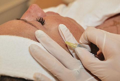 Karboksyterapia - twarz